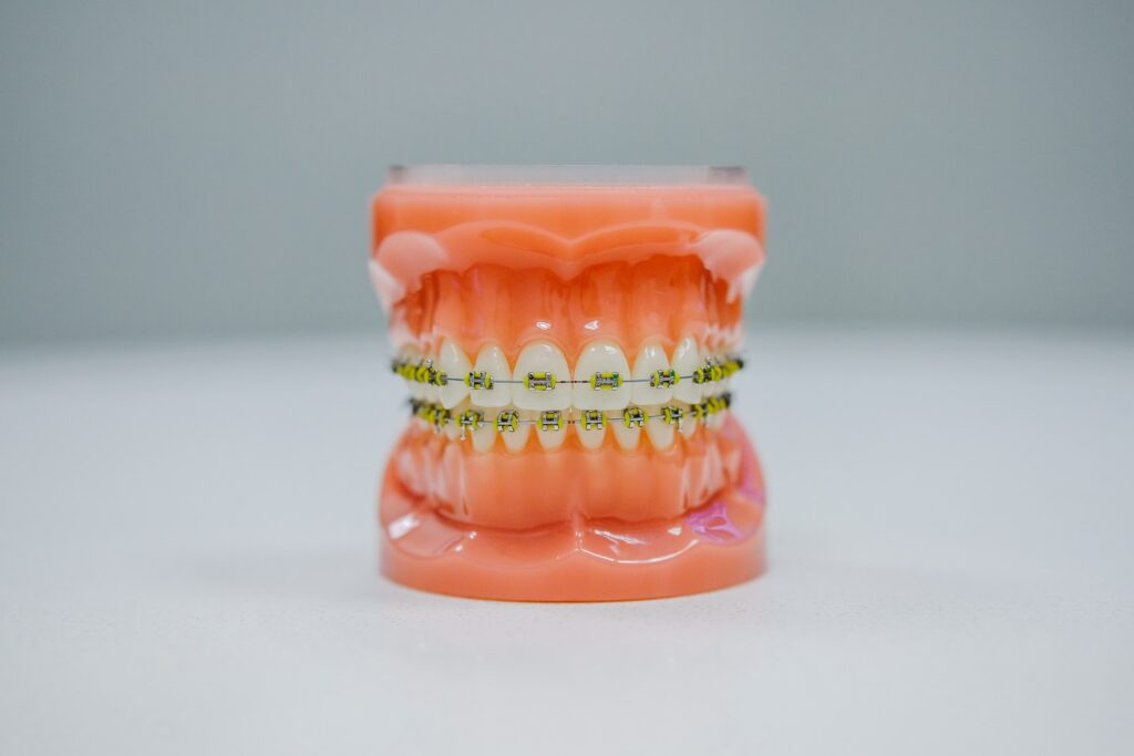 Complete Guide to Make Your Invisalign Work in The Best Way